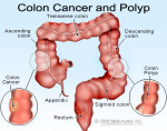 colon_cancer-resized-600.jpg
